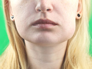 Swelling after dental surgery information