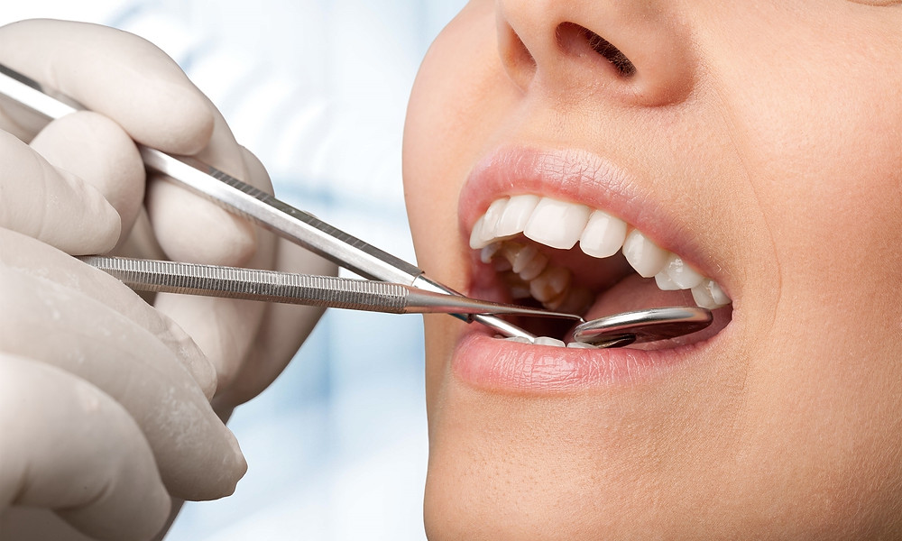 Crown Lengthening, Peterborough Periodontists, Lindsay Dentists, Kawarthas Periodontists,