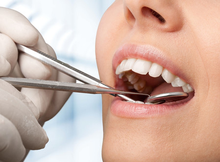 Dental Crown Lengthening Procedure