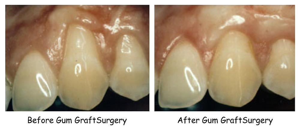 Peterborough Periodontists, Dentists in Peterborough,