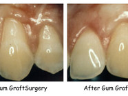Do you have exposed tooth roots? Gum Recession