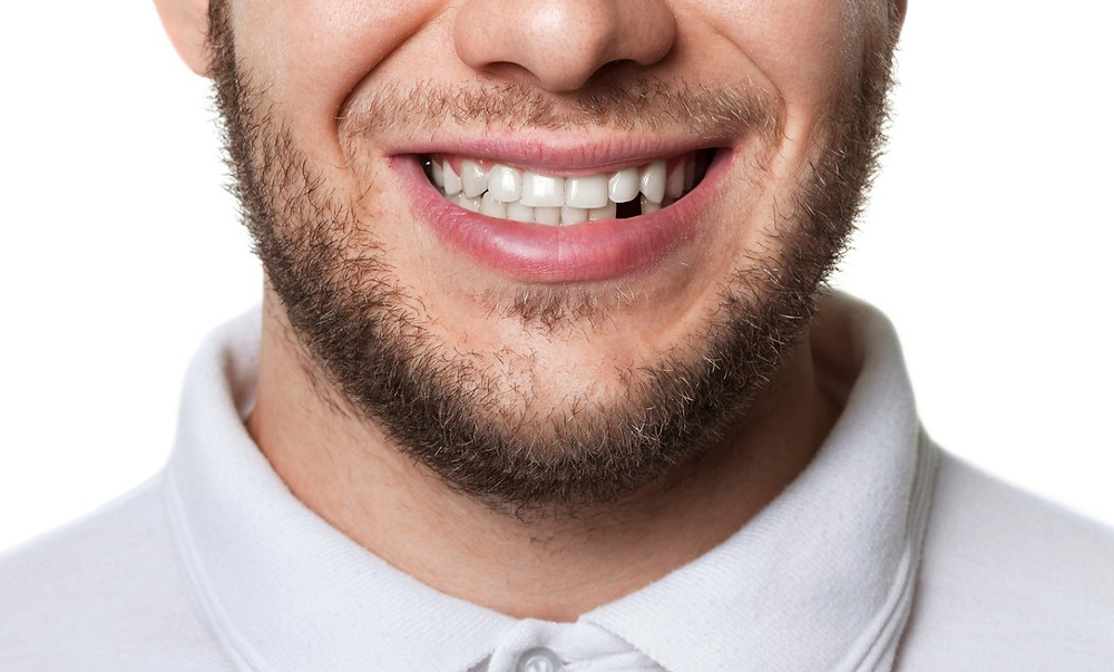 Missing Tooth, Dental Implants, Peterborough Periodontists,