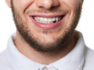 Do you have missing teeth?