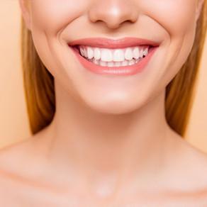 Information on Dental Veneers