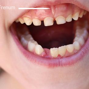Frenectomy – Dental Procedure for Children