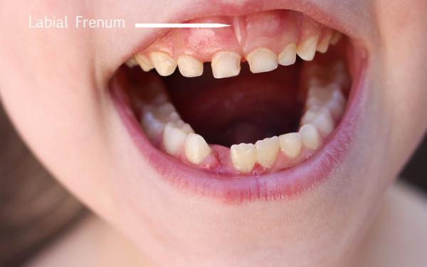 Frenectomy, Best dentist in Brampton, Dental offices in Brampton, labial-frenum,