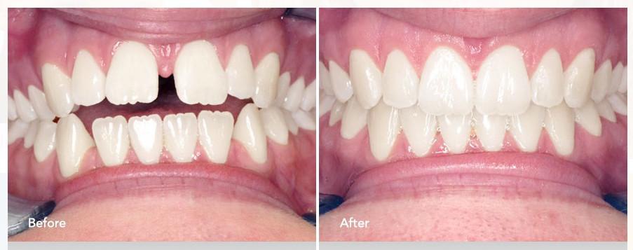 Brampton Dentists, Invisalign Braces, Dental Health, Best Way to Straighten Teeth, Top Dentists in Caledon, Caledon Dentists,