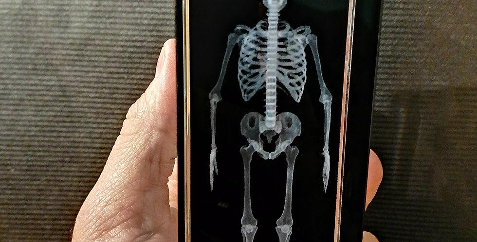 Squelette verre