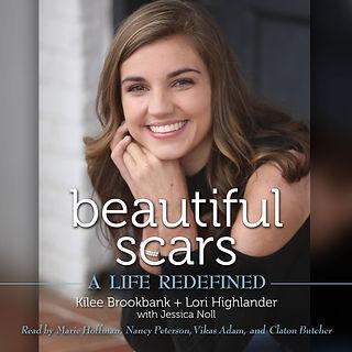 Beautiful Scars audiobook