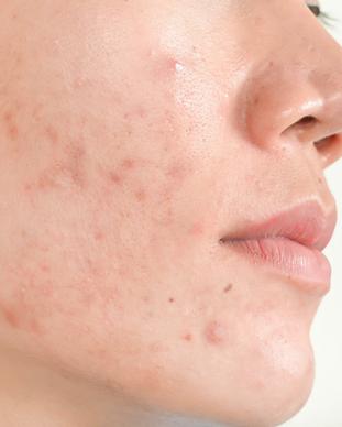 piel de acné.png