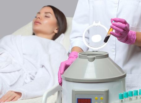 Tratamiento facial con Plasma Rico en Plaquetas (PRP) en Vit&Drip Center, Marbella