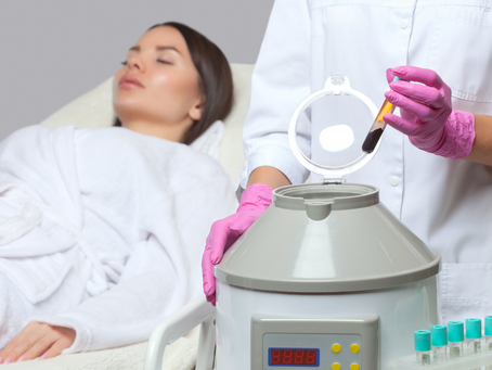 Platelet-Rich Plasma (PRP) Facial treatment at Vit&Drip Center, Marbella