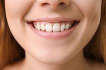 gummy smile marbella vitdripcenter.jpg
