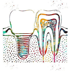 'Human_teeth_and_dental_implant'_by_