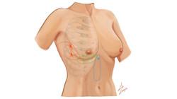 Illustration Chirurgicale