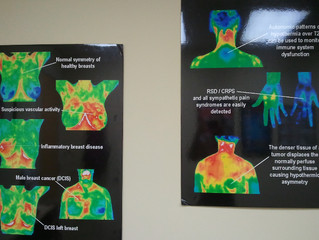Thermography - Breast Scans Without Pain or Radiation