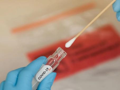 SARS-CoV-2 Prueba Rapida Antígeno