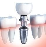 implante dentario sao paulo