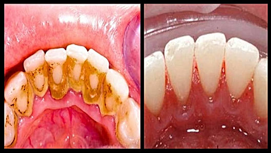 limpezadentista, remoção de tartaro, clareameto dentário em higienopolis