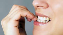 Atenção, roer as unhas faz mal para os dentes!