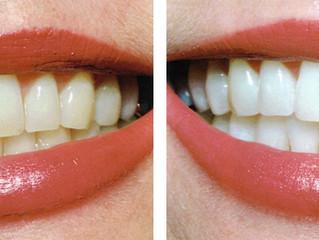 Qualquer pessoa pode fazer clareamento dental?