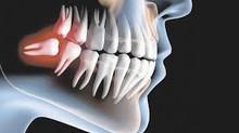 Todos devem extrair os dentes do siso? A cirurgia dói? Veja mitos e verdades