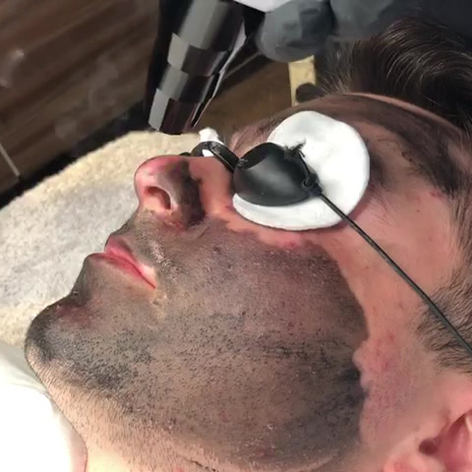 PRO Q LASER CARBON PEEL TREATMENT