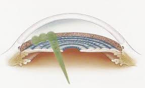 laser treatment.jpg