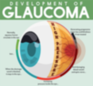 glaucoma-diagram.png