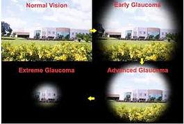 GLAUCOMA VISION.jpg