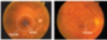 Photograph-shows-a-normal-healthy-retina