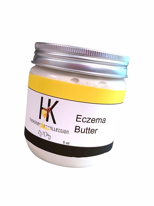 Eczema Face &  Body Butter 8oz