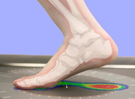 Anatomia do Pé: Tipos de pisada.