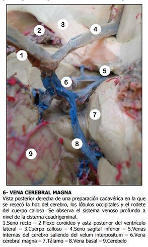 cerebral magna.jpg