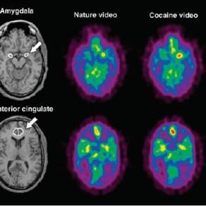 Fundamentos neurobiológicos de las adicciones. Parte I
