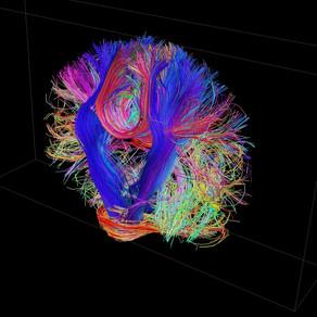 Human Connectome Project: El mapa más extenso de las conexiones del cerebro humano