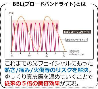 bblとは図.jpg