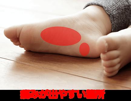 足底筋膜炎.png