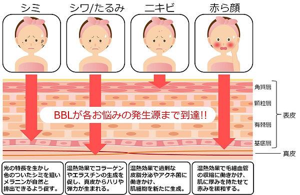bbl効果図.jpg