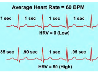 Implementing HRV with Athlete patients