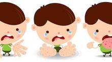 O que você precisa saber sobre a síndrome mão-pé-boca