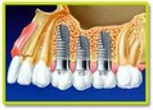 Cirugia e Implantologia.jpg