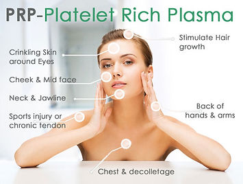 Vampire Facials, Platelet Rich Plasma,
