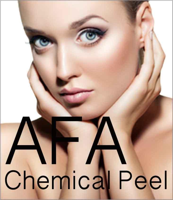AFA Chemical Peel