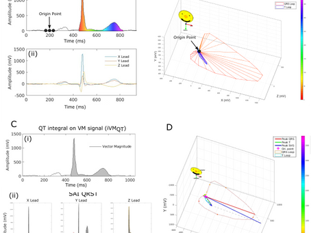 Dynamic Predictive Accuracy of Electrocardiographic Biomarkers of Sudden Cardiac Death within a Surv
