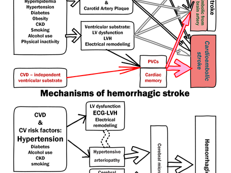 Electrophysiological Ventricular Substrate of Stroke: a Prospective Cohort Study in the ARIC cohort.