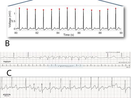 Hemodialysis Procedure Associated Autonomic Imbalance and Cardiac Arrhythmias: Insights from Continu