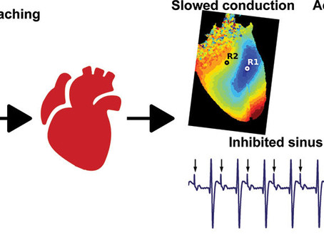 Plasticizer Interaction With the Heart: Chemicals Used in Plastic Medical Devices Can Interfere With