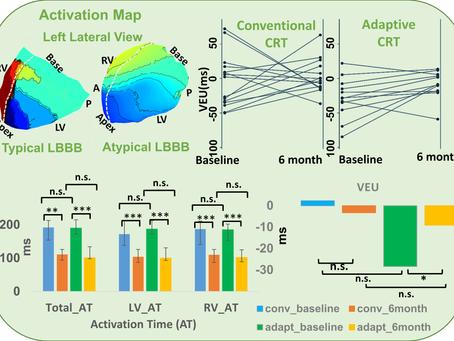 Adaptive CRT Effect on Electrical Dyssynchrony (aCRT-ELSYNC): a randomized controlled trial