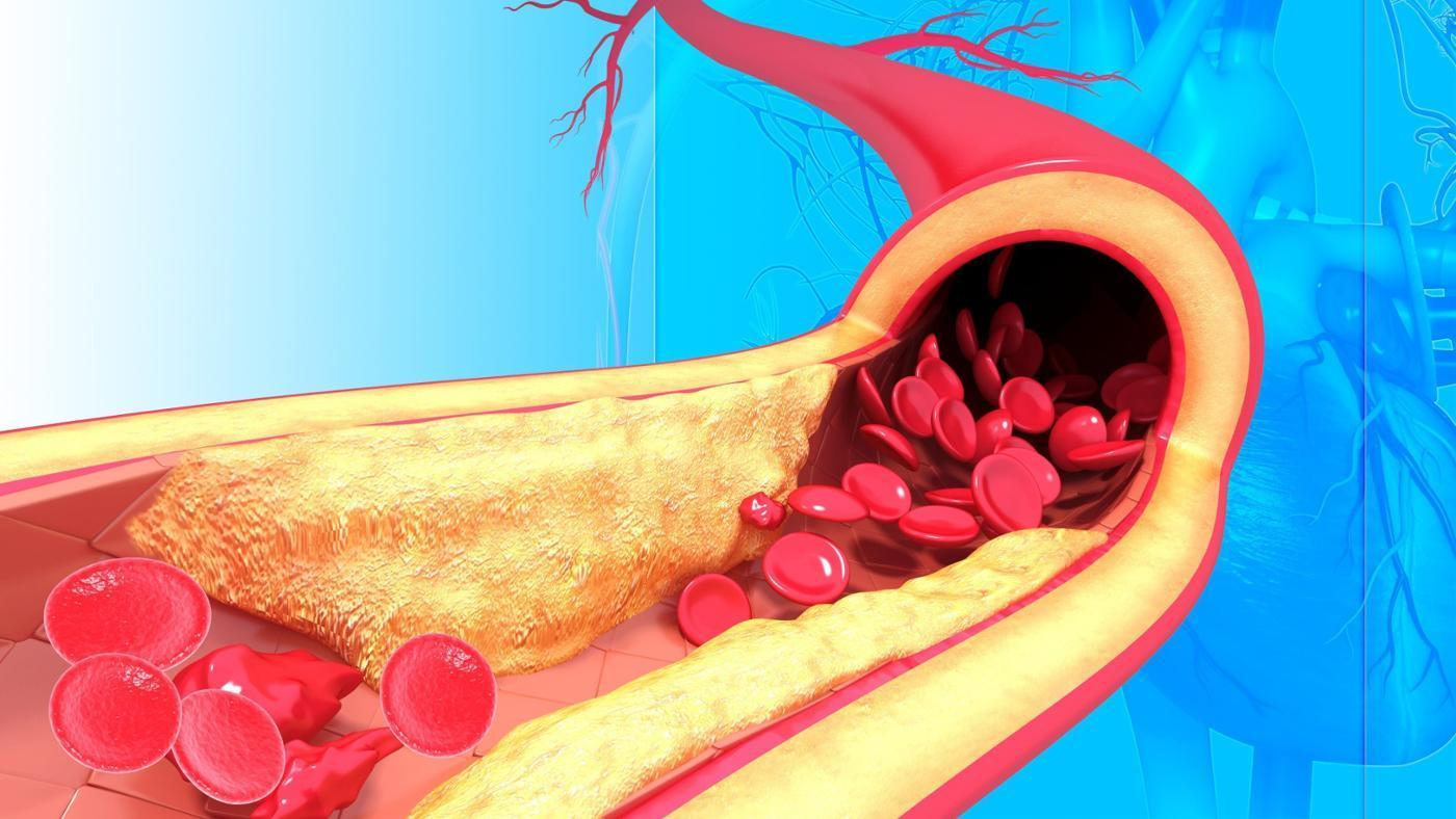 10 Foods That Unclog Arteries Natural | Home | klix